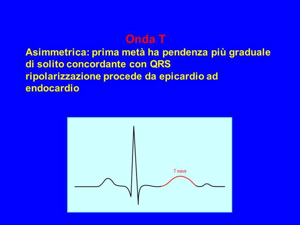 Onda T Asimmetrica: prima metà ha pendenza più graduale di solito concordante con QRS ripolarizzazione procede da epicardio ad endocardio