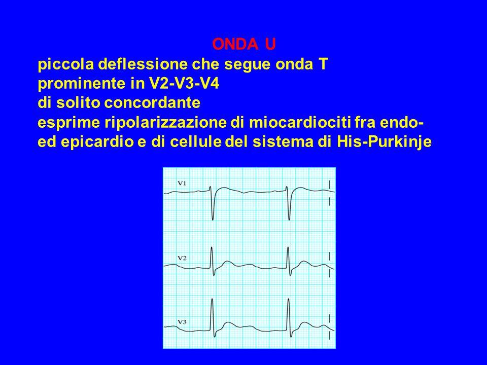 ONDA U piccola deflessione che segue onda T prominente in V2-V3-V4 di solito concordante esprime ripolarizzazione di miocardiociti fra endo- ed epicar