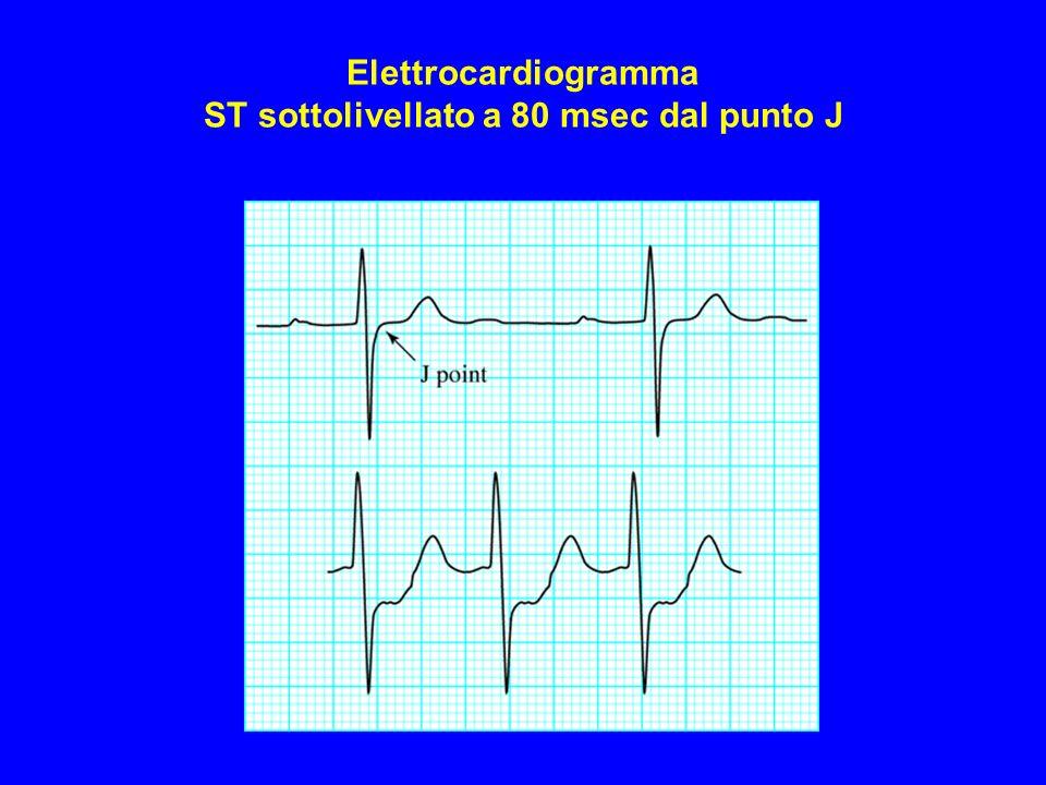 Elettrocardiogramma ST sottolivellato a 80 msec dal punto J