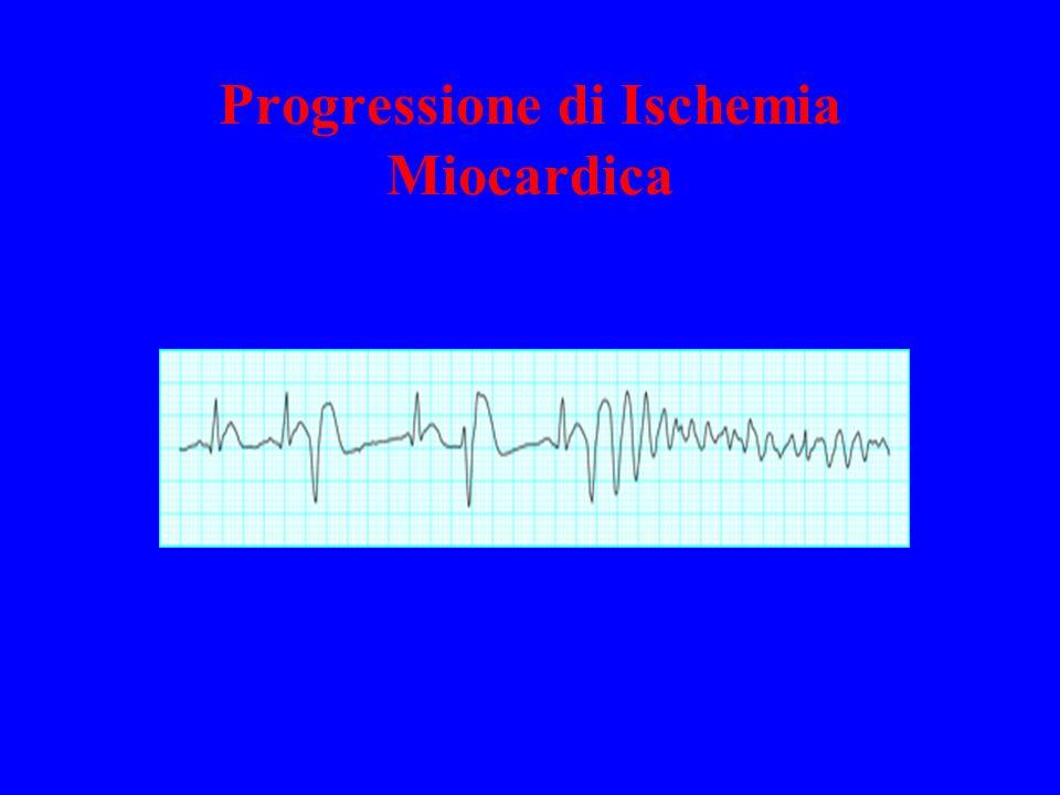 Progressione di Ischemia Miocardica