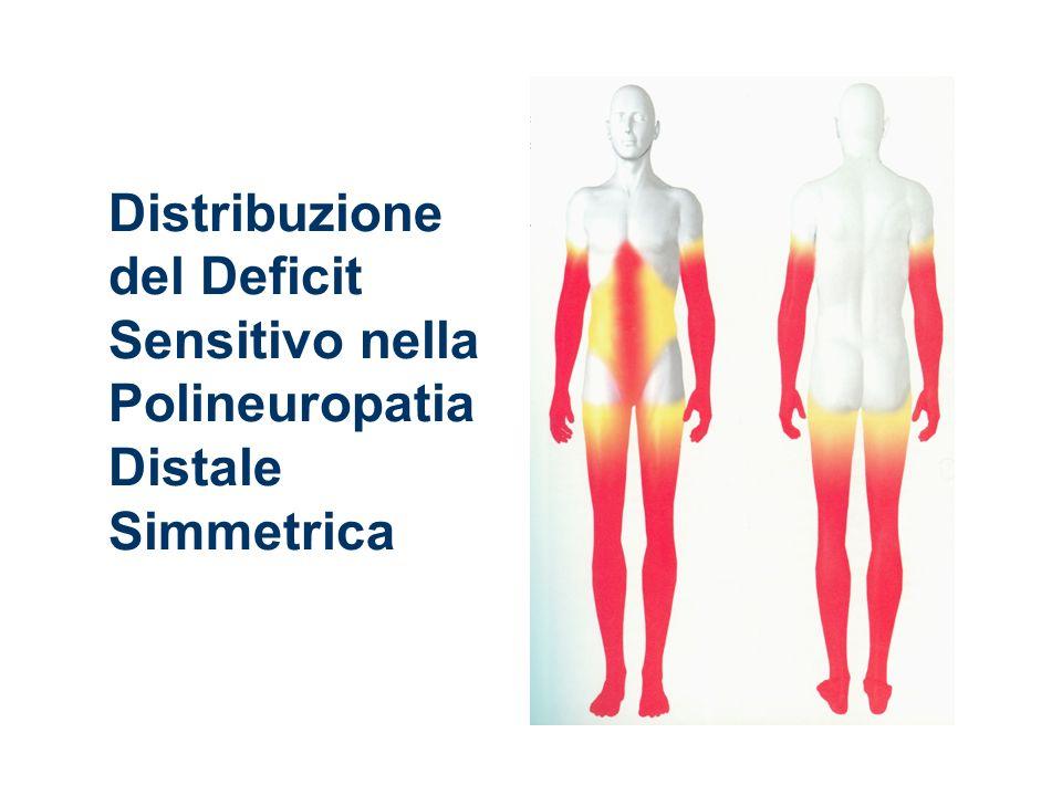Distribuzione del Deficit Sensitivo nella Polineuropatia Distale Simmetrica