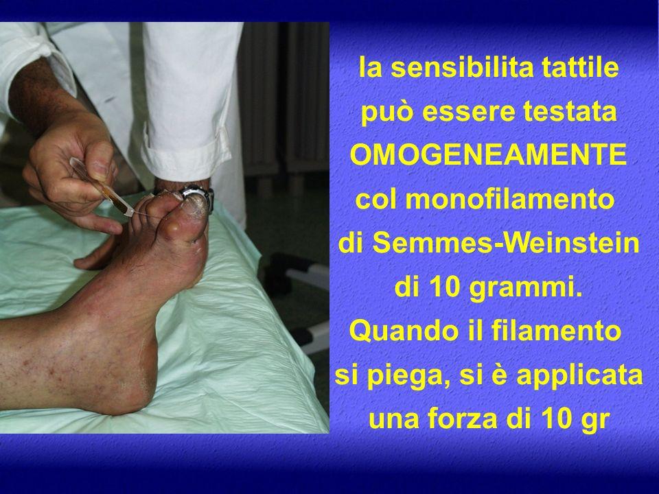 la sensibilita tattile può essere testata OMOGENEAMENTE col monofilamento di Semmes-Weinstein di 10 grammi. Quando il filamento si piega, si è applica