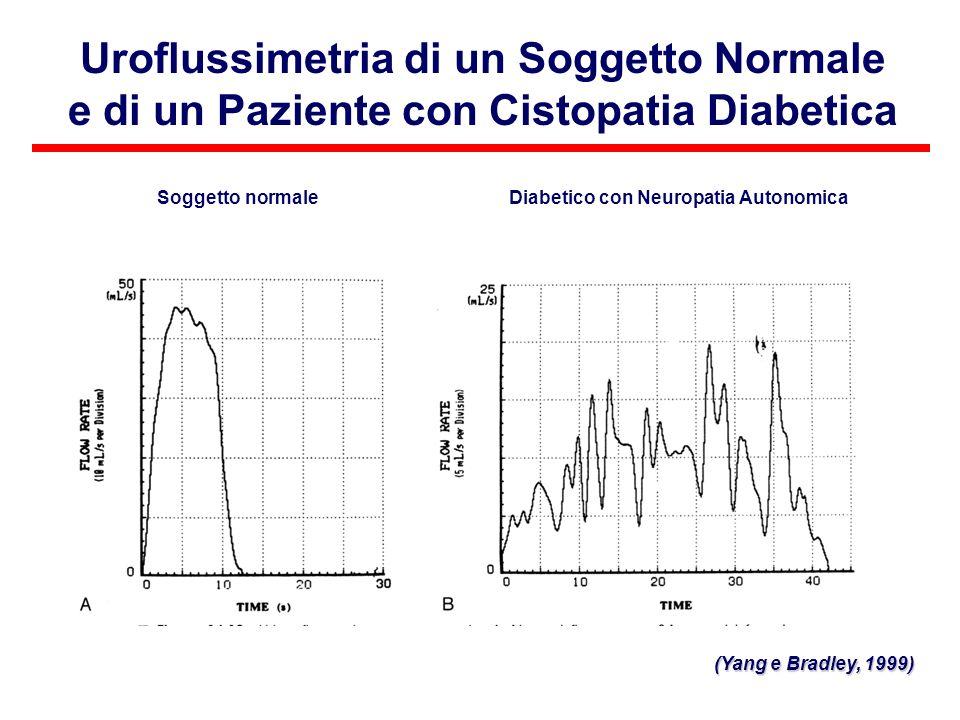 Uroflussimetria di un Soggetto Normale e di un Paziente con Cistopatia Diabetica Soggetto normaleDiabetico con Neuropatia Autonomica (Yang e Bradley,