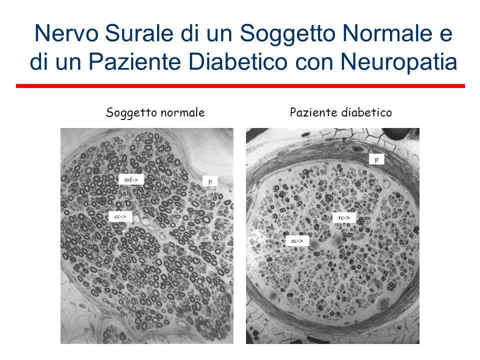 Nervo Surale di un Soggetto Normale e di un Paziente Diabetico con Neuropatia Soggetto normalePaziente diabetico