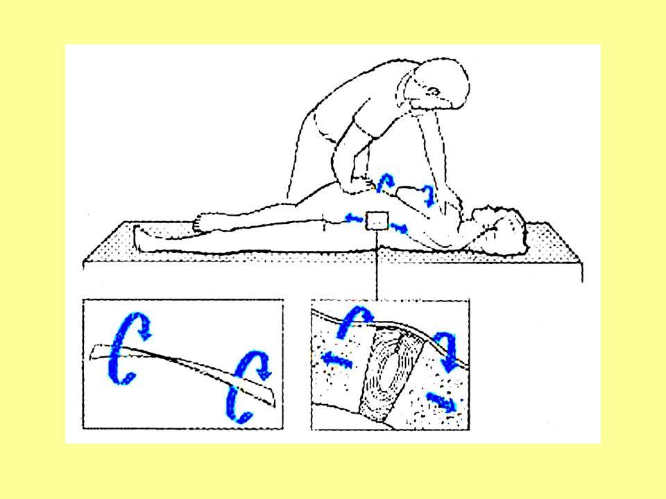 manipolazioni - indicate per ridurre uno spostamento cartilagineo ne troppo grande ne troppo laterale - pure indicate per ridurre una protrusione nucleare molle, se piccola e recente, però bisogna cambiare la tecnica che deve essere eseguita con una pressione sostenuta e prolungata