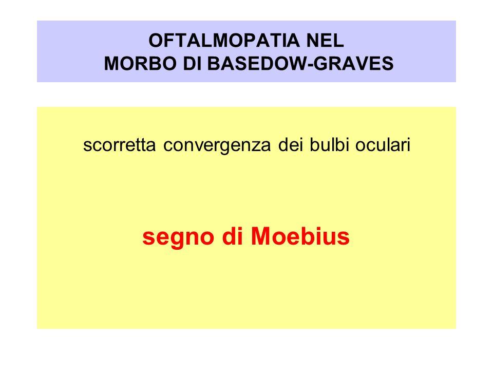 OFTALMOPATIA NEL MORBO DI BASEDOW-GRAVES scorretta convergenza dei bulbi oculari segno di Moebius