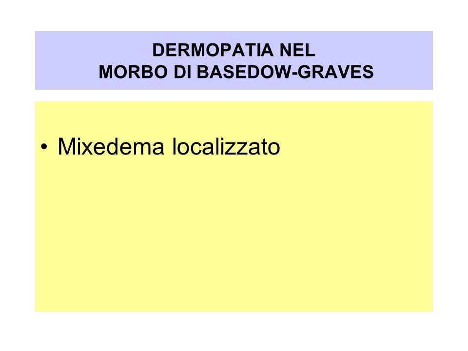 Mixedema localizzato DERMOPATIA NEL MORBO DI BASEDOW-GRAVES