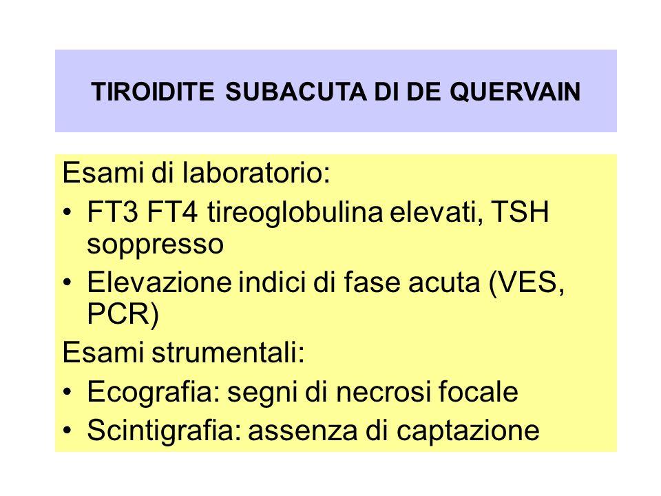 Oftalmopatia nel Morbo di Graves-Basedow Esami di laboratorio: FT3 FT4 tireoglobulina elevati, TSH soppresso Elevazione indici di fase acuta (VES, PCR