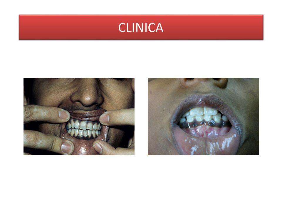 Dolore addominale Nausea/vomito Febbre Ipoglicemia Ipotensione -> shock