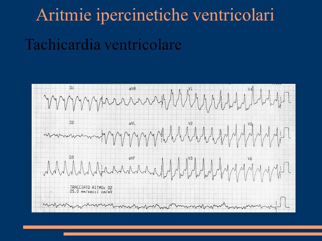 Aritmie ipercinetiche ventricolari Tachicardia ventricolare