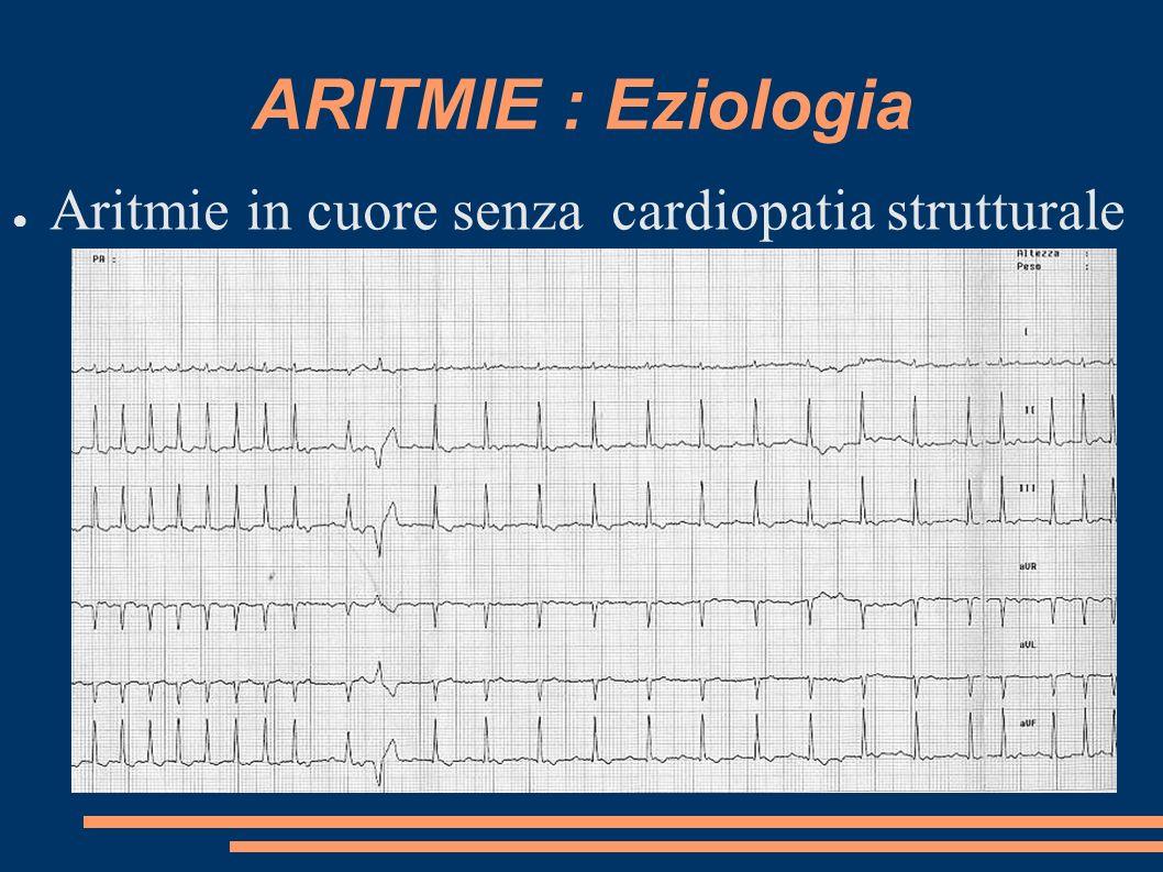 ARITMIE : Eziologia Aritmie in cuore senza cardiopatia strutturale