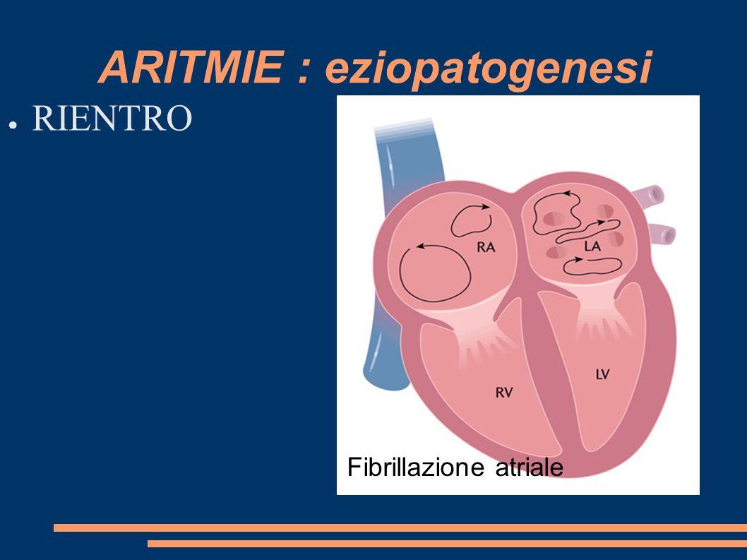 ARITMIE : eziopatogenesi RIENTRO Fibrillazione atriale