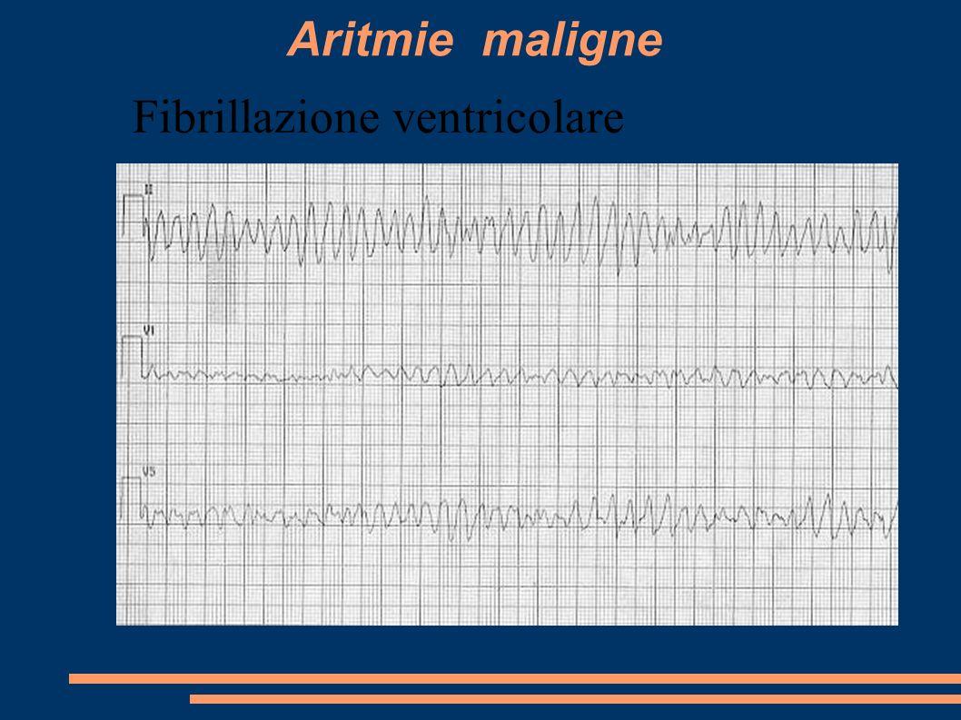 Aritmie maligne Fibrillazione ventricolare