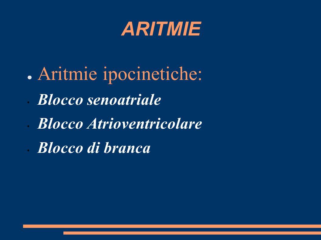 ARITMIE Aritmie ipocinetiche: Blocco senoatriale Blocco Atrioventricolare Blocco di branca