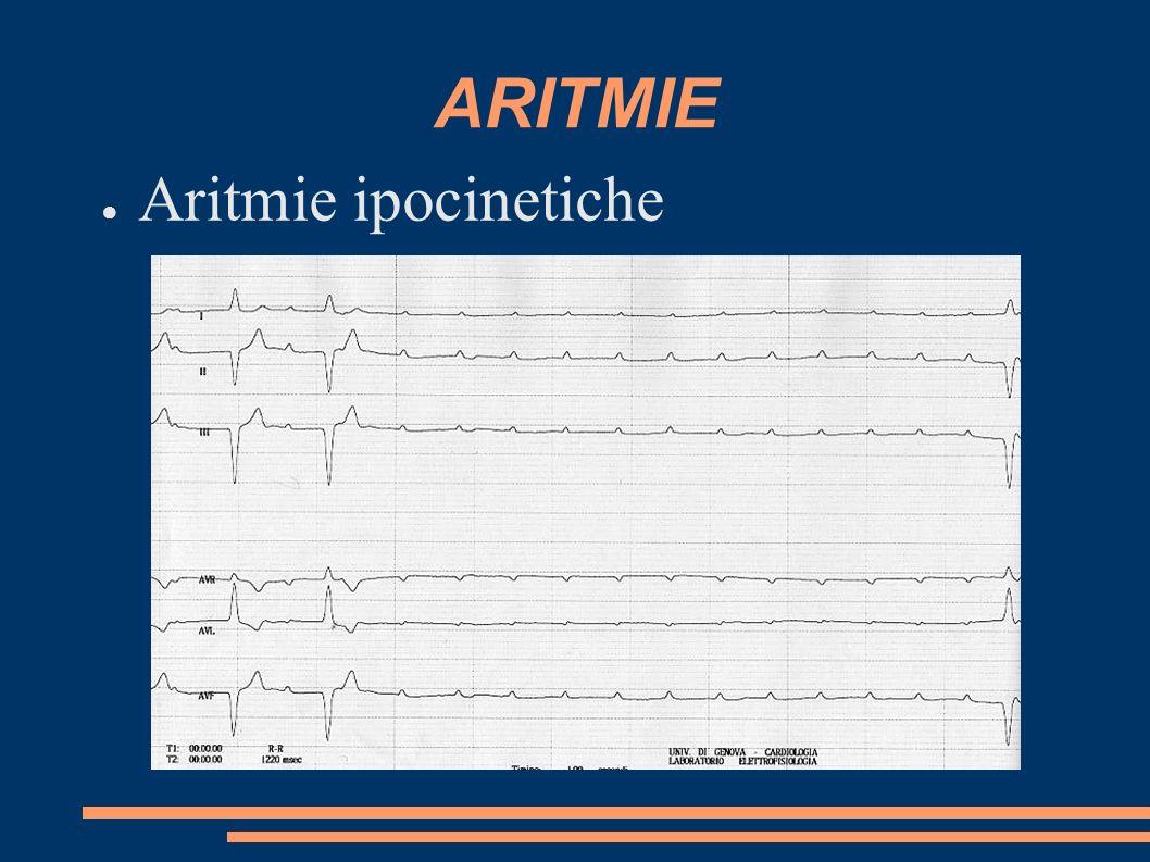 ARITMIE Aritmie ipocinetiche
