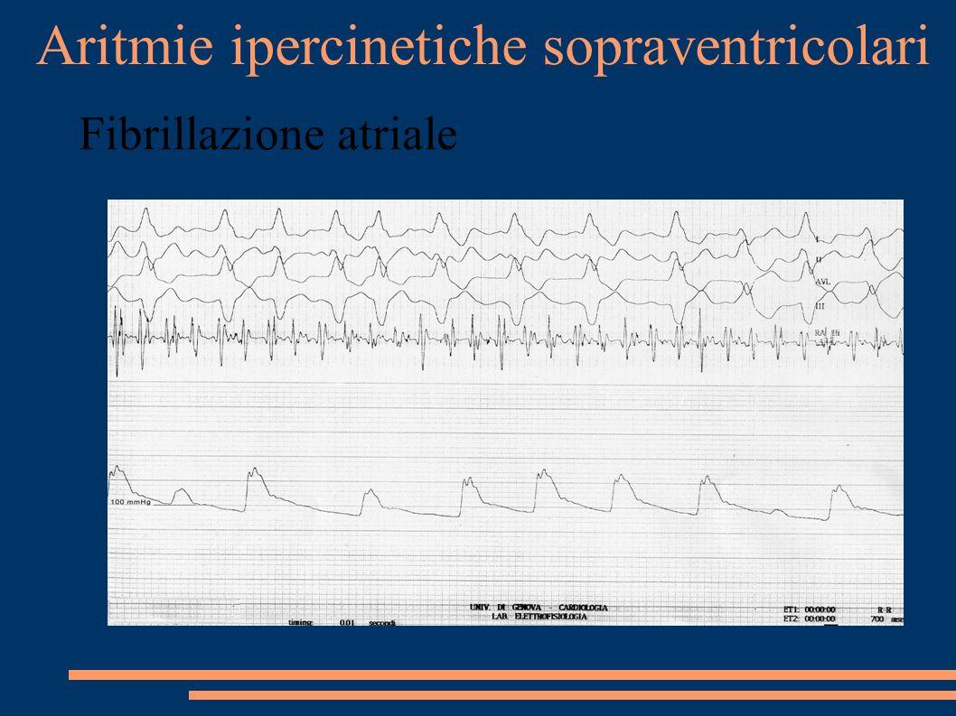 Aritmie ipercinetiche sopraventricolari Fibrillazione atriale