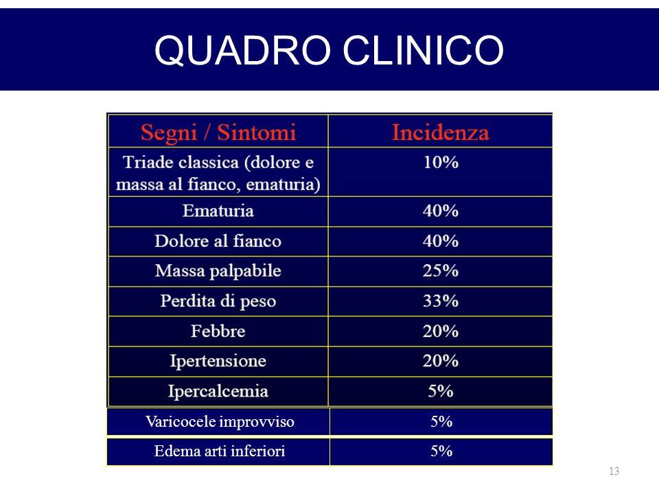 13 QUADRO CLINICO Varicocele improvviso Edema arti inferiori 5%