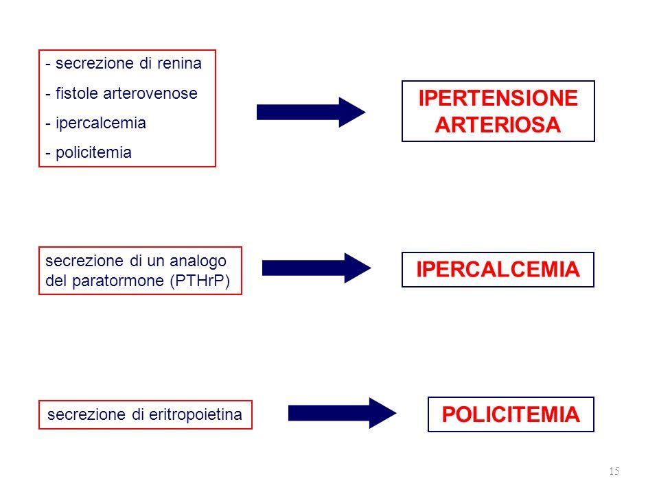 15 IPERTENSIONE ARTERIOSA POLICITEMIA IPERCALCEMIA - secrezione di renina - fistole arterovenose - ipercalcemia - policitemia secrezione di un analogo