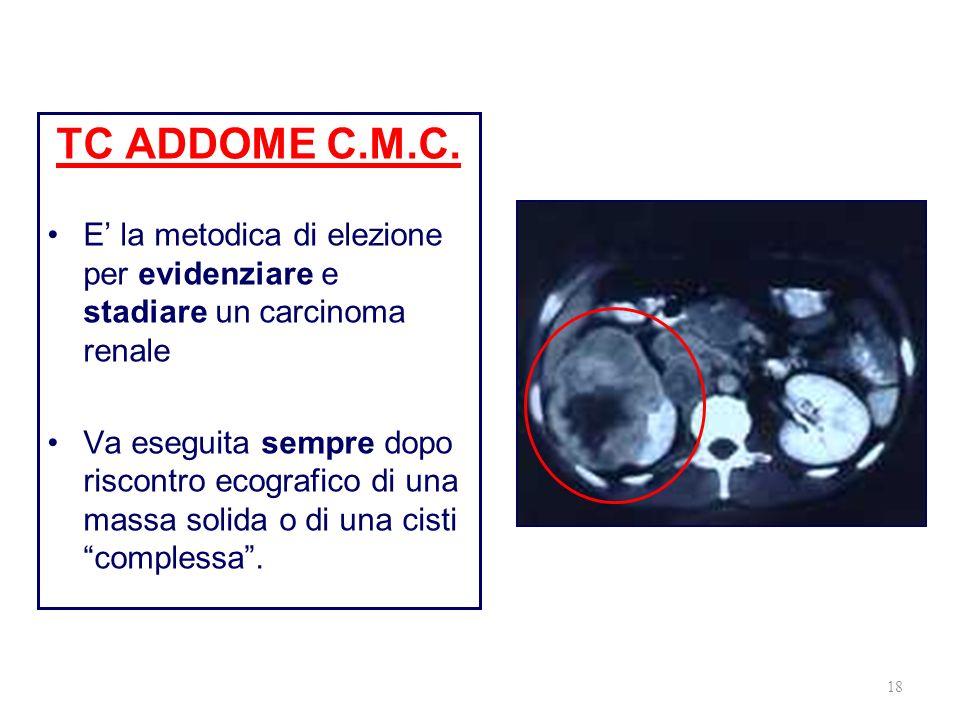 18 TC ADDOME C.M.C. E la metodica di elezione per evidenziare e stadiare un carcinoma renale Va eseguita sempre dopo riscontro ecografico di una massa