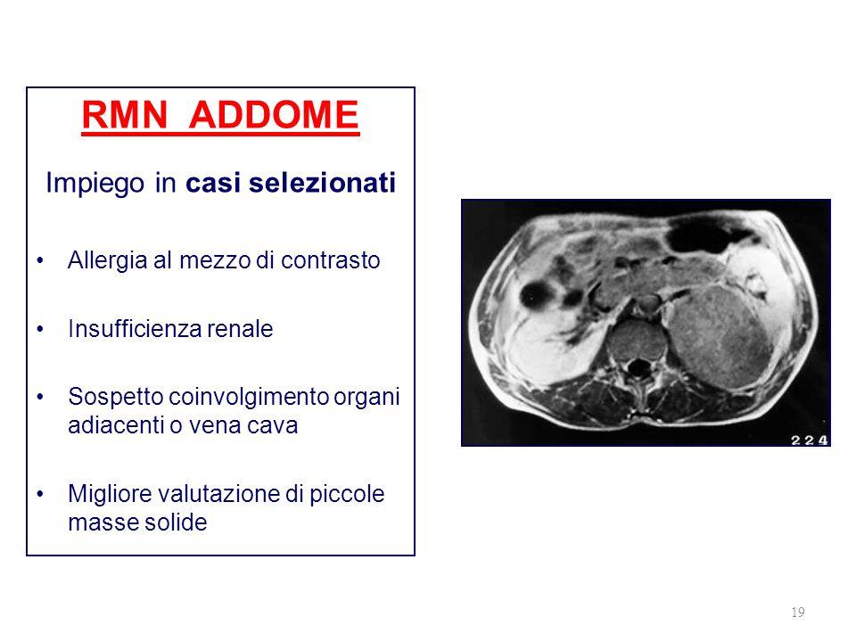 19 RMN ADDOME Impiego in casi selezionati Allergia al mezzo di contrasto Insufficienza renale Sospetto coinvolgimento organi adiacenti o vena cava Mig