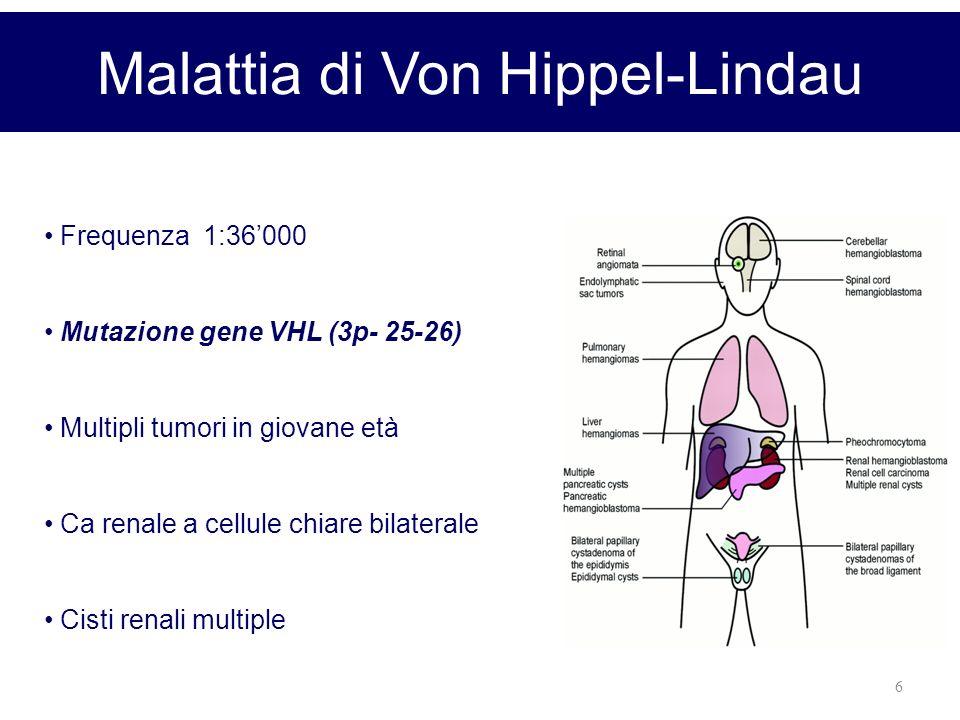 6 Malattia di Von Hippel-Lindau Frequenza 1:36000 Mutazione gene VHL (3p- 25-26) Multipli tumori in giovane età Ca renale a cellule chiare bilaterale