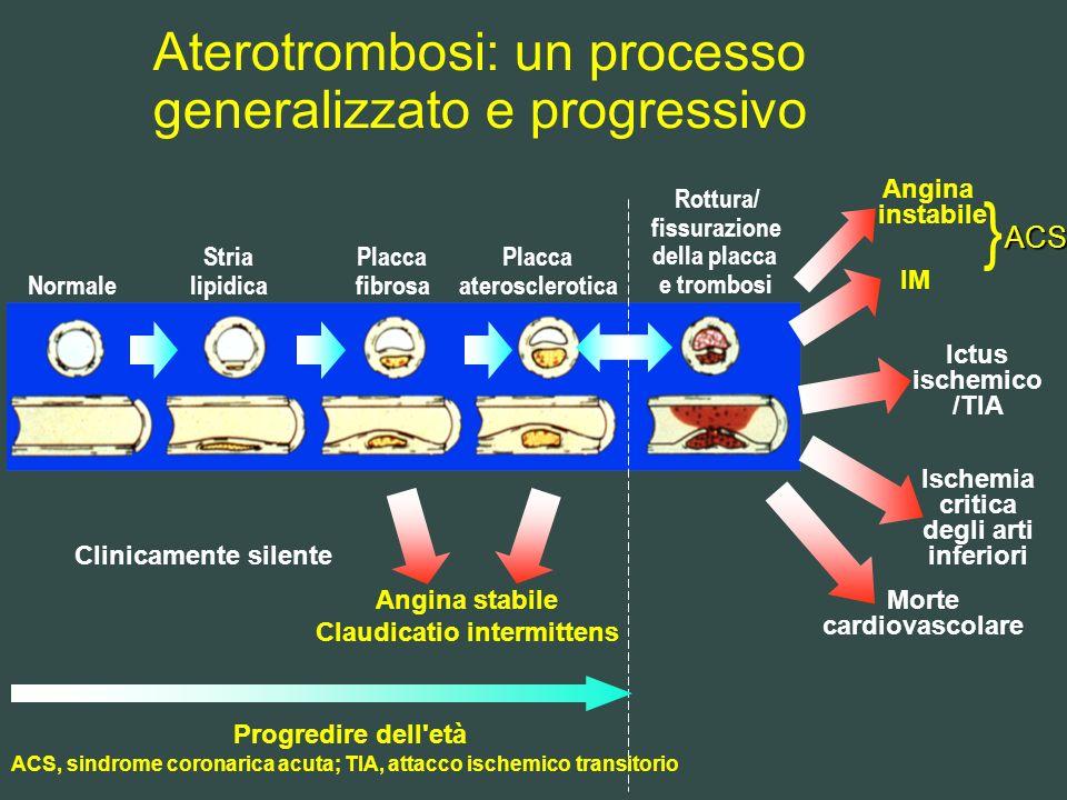 Aterotrombosi: un processo generalizzato e progressivo Normale Stria lipidica Placca fibrosa Placca aterosclerotica Rottura/ fissurazione della placca