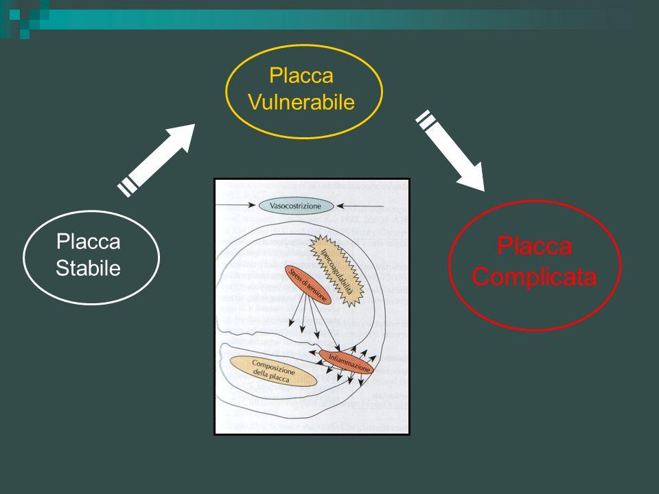 Placca Stabile Placca Vulnerabile Placca Complicata