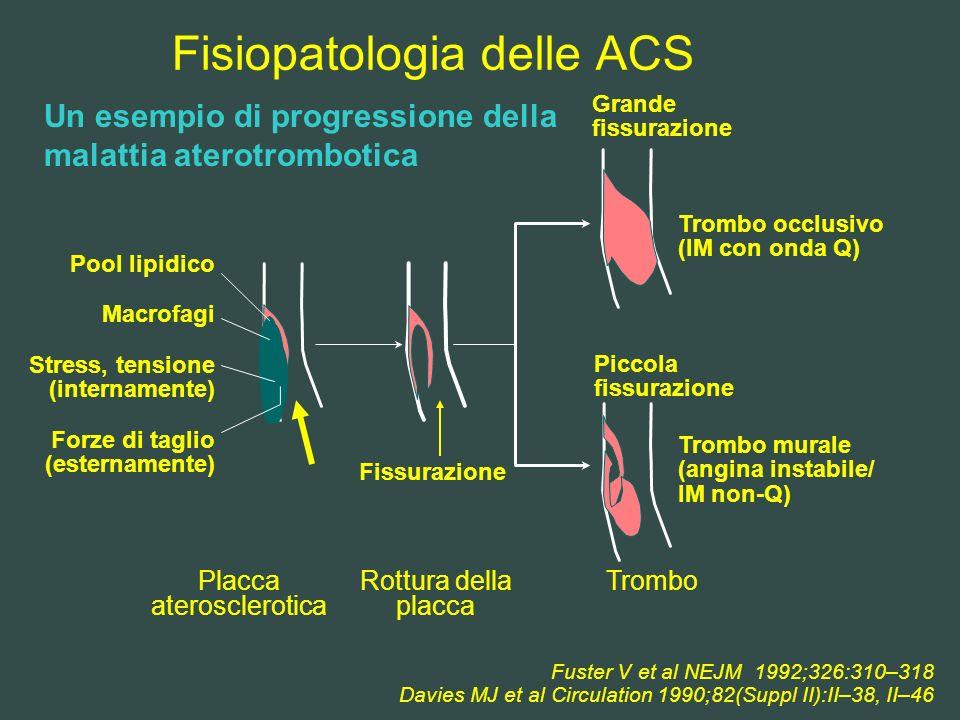 Fisiopatologia delle ACS Fuster V et al NEJM 1992;326:310–318 Davies MJ et al Circulation 1990;82(Suppl II):II–38, II–46 Pool lipidico Macrofagi Stres