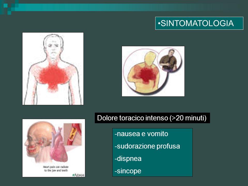 SINTOMATOLOGIA Dolore toracico intenso (>20 minuti) -nausea e vomito -sudorazione profusa -dispnea -sincope