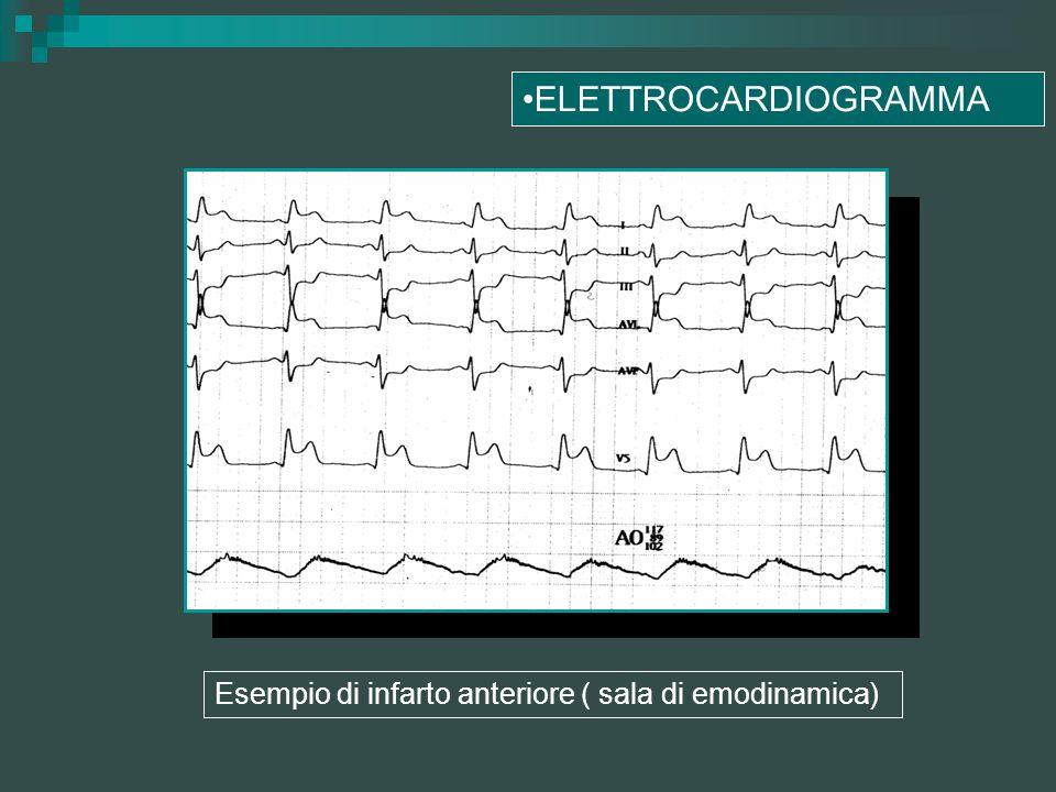 Esempio di infarto anteriore ( sala di emodinamica) ELETTROCARDIOGRAMMA