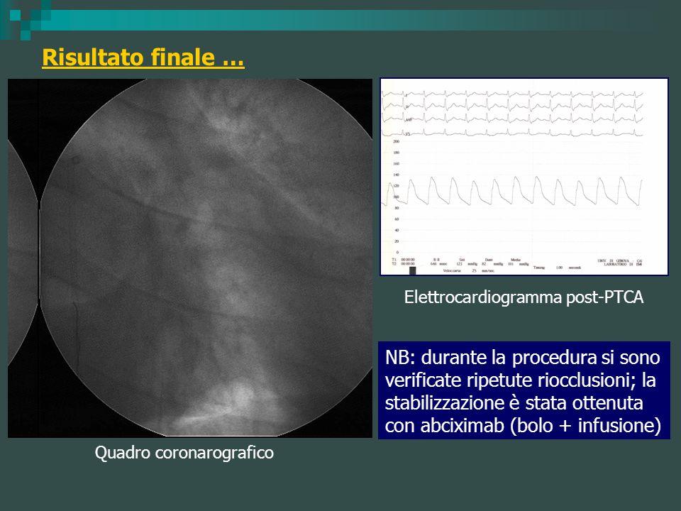 Risultato finale … Elettrocardiogramma post-PTCA Quadro coronarografico NB: durante la procedura si sono verificate ripetute riocclusioni; la stabiliz