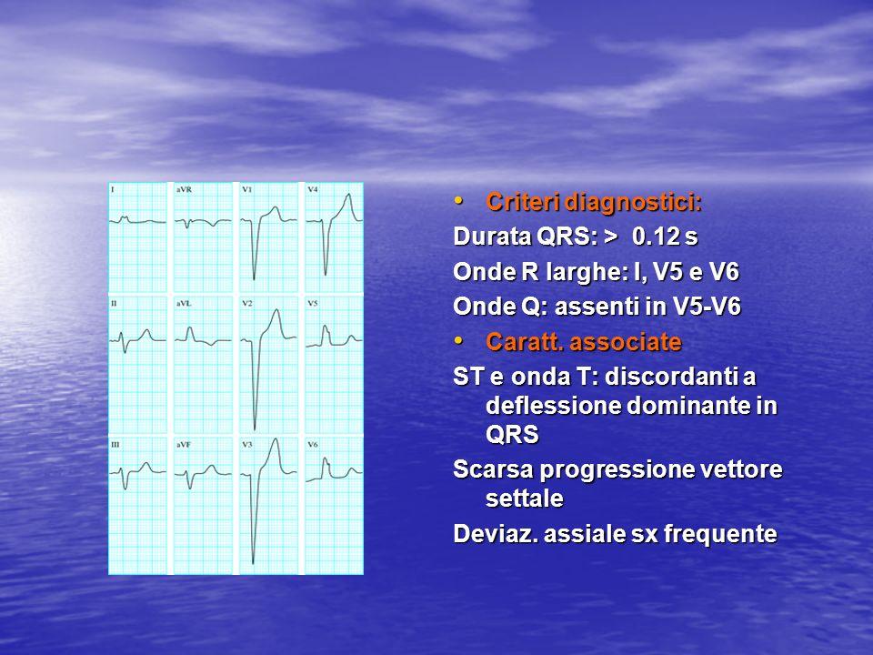 Criteri diagnostici: Criteri diagnostici: Durata QRS: > 0.12 s Onde R larghe: I, V5 e V6 Onde Q: assenti in V5-V6 Caratt. associate Caratt. associate
