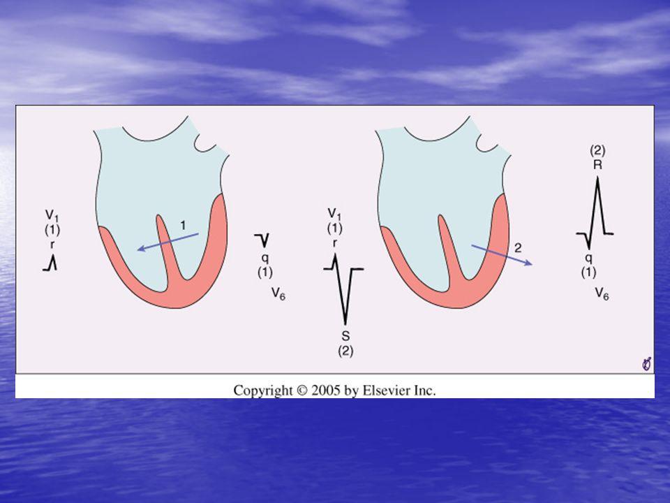 Blocchi di Branca (BB) Il fascio di His si divide nelle branche sx e dx Il fascio di His si divide nelle branche sx e dx La branca sx si divide nellemifascio anteriore e posteriore La branca sx si divide nellemifascio anteriore e posteriore I ritardi (blocchi) di conduzione in questi fasci producono specifici pattern EKG I ritardi (blocchi) di conduzione in questi fasci producono specifici pattern EKG
