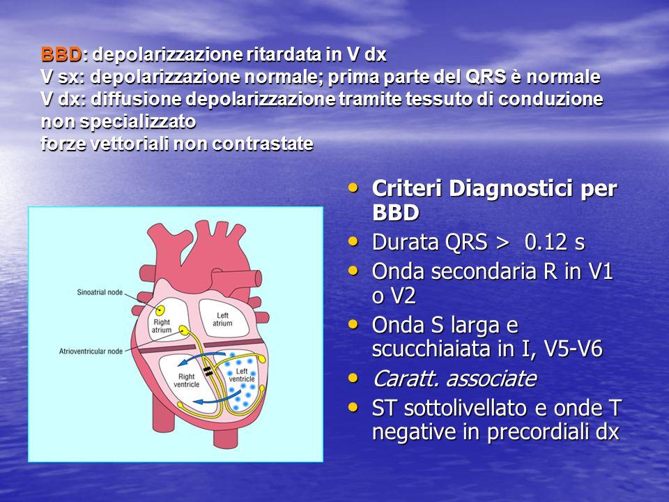BBD: depolarizzazione ritardata in V dx V sx: depolarizzazione normale; prima parte del QRS è normale V dx: diffusione depolarizzazione tramite tessut