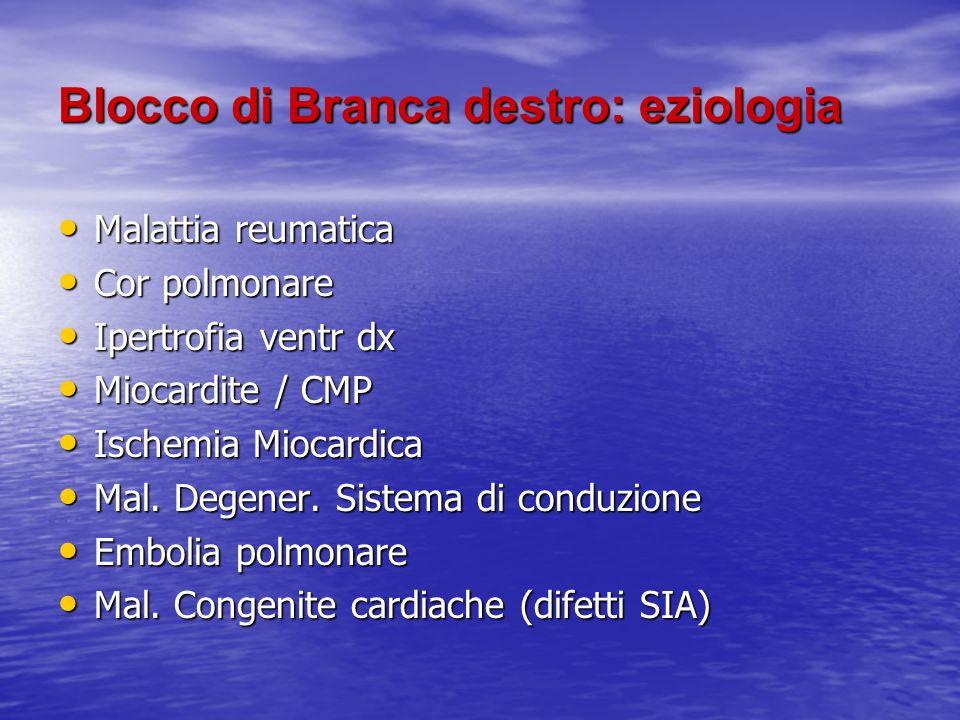 Blocco di Branca destro: eziologia Malattia reumatica Malattia reumatica Cor polmonare Cor polmonare Ipertrofia ventr dx Ipertrofia ventr dx Miocardit