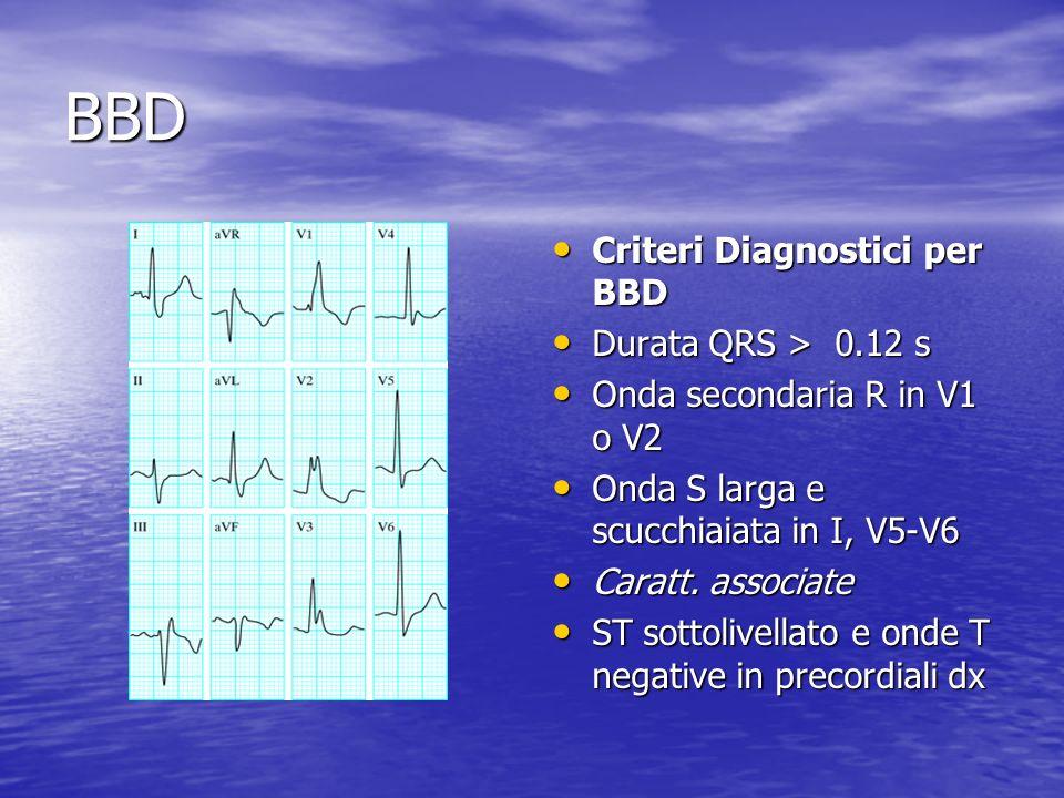 BBD Criteri Diagnostici per BBD Criteri Diagnostici per BBD Durata QRS > 0.12 s Durata QRS > 0.12 s Onda secondaria R in V1 o V2 Onda secondaria R in