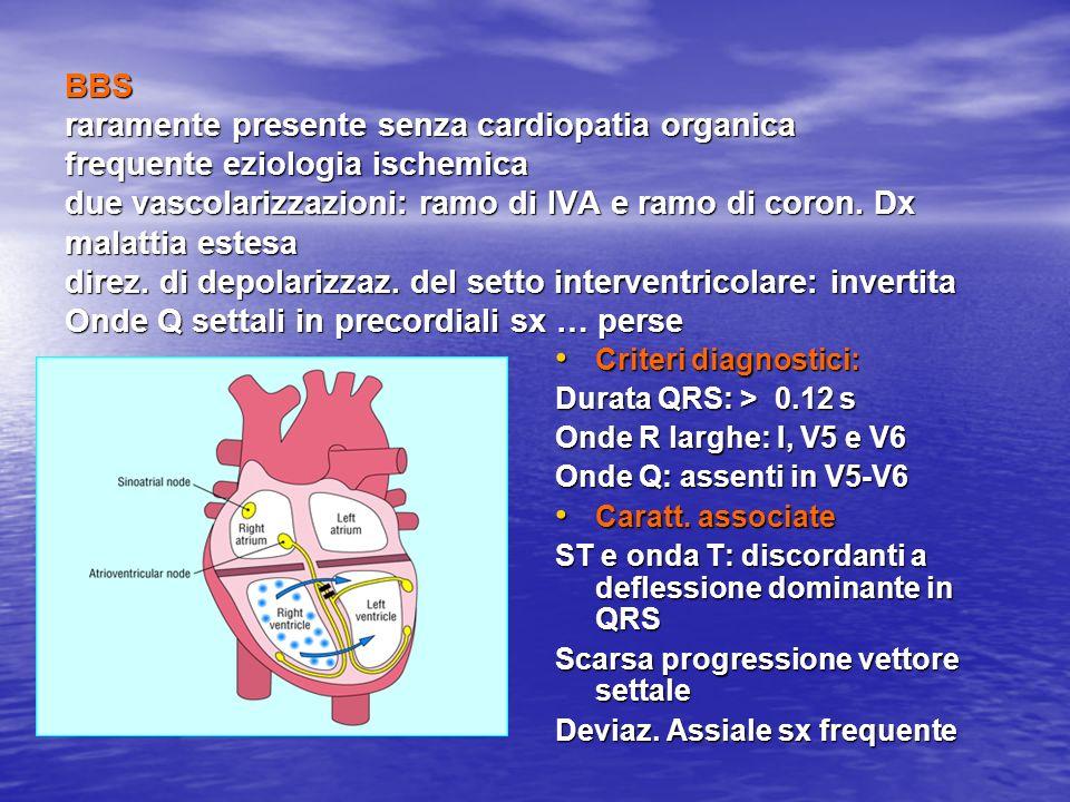 BBS raramente presente senza cardiopatia organica frequente eziologia ischemica due vascolarizzazioni: ramo di IVA e ramo di coron. Dx malattia estesa