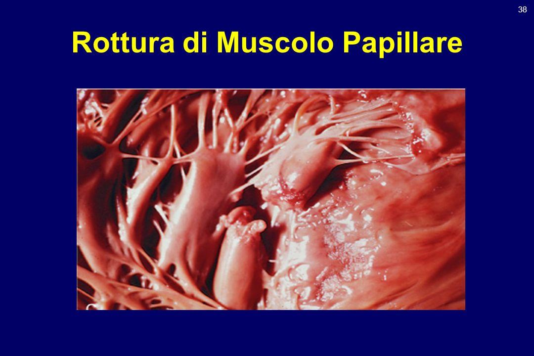 38 Rottura di Muscolo Papillare