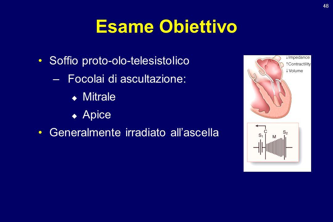 48 Esame Obiettivo Soffio proto-olo-telesistolico –Focolai di ascultazione: Mitrale Apice Generalmente irradiato allascella