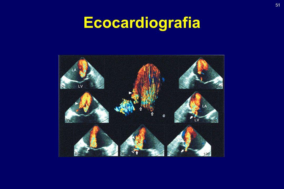 51 Ecocardiografia