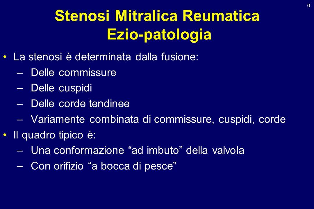 6 Stenosi Mitralica Reumatica Ezio-patologia La stenosi è determinata dalla fusione: –Delle commissure –Delle cuspidi –Delle corde tendinee –Variament