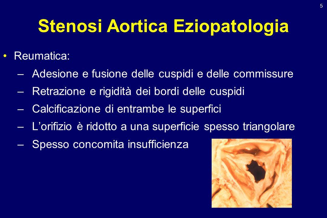 5 Stenosi Aortica Eziopatologia Reumatica: –Adesione e fusione delle cuspidi e delle commissure –Retrazione e rigidità dei bordi delle cuspidi –Calcif