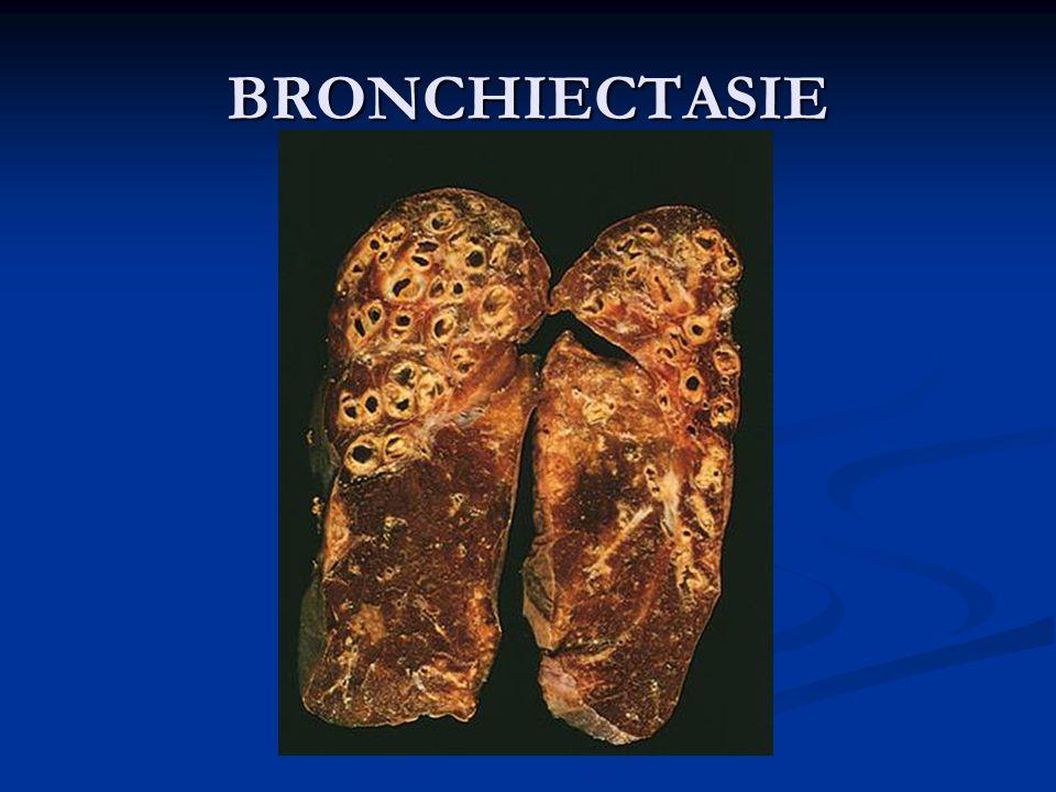 Tac che evidenzia bronchiectasie diffuse particolarmente estese a carico dei lobi superiore e inferiore di sinistra e del lobo medio di destra Tac che evidenzia bronchiectasie diffuse particolarmente estese a carico dei lobi superiore e inferiore di sinistra e del lobo medio di destra