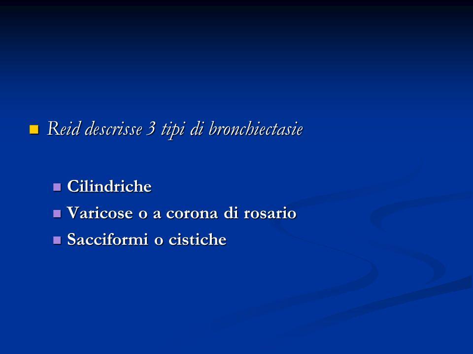 Reid descrisse 3 tipi di bronchiectasie Reid descrisse 3 tipi di bronchiectasie Cilindriche Cilindriche Varicose o a corona di rosario Varicose o a corona di rosario Sacciformi o cistiche Sacciformi o cistiche