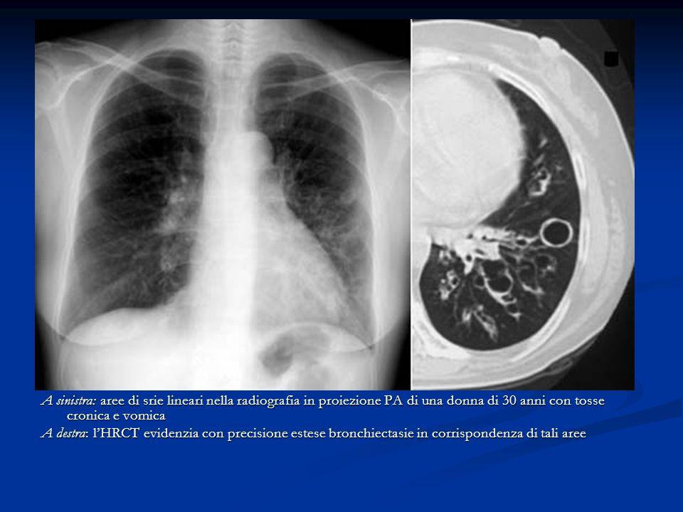 A sinistra: aree di srie lineari nella radiografia in proiezione PA di una donna di 30 anni con tosse cronica e vomica A destra: lHRCT evidenzia con precisione estese bronchiectasie in corrispondenza di tali aree