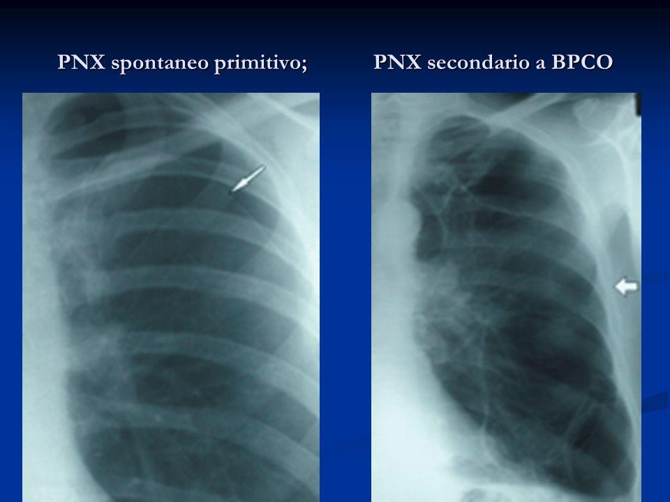 PNX spontaneo primitivo; PNX secondario a BPCO