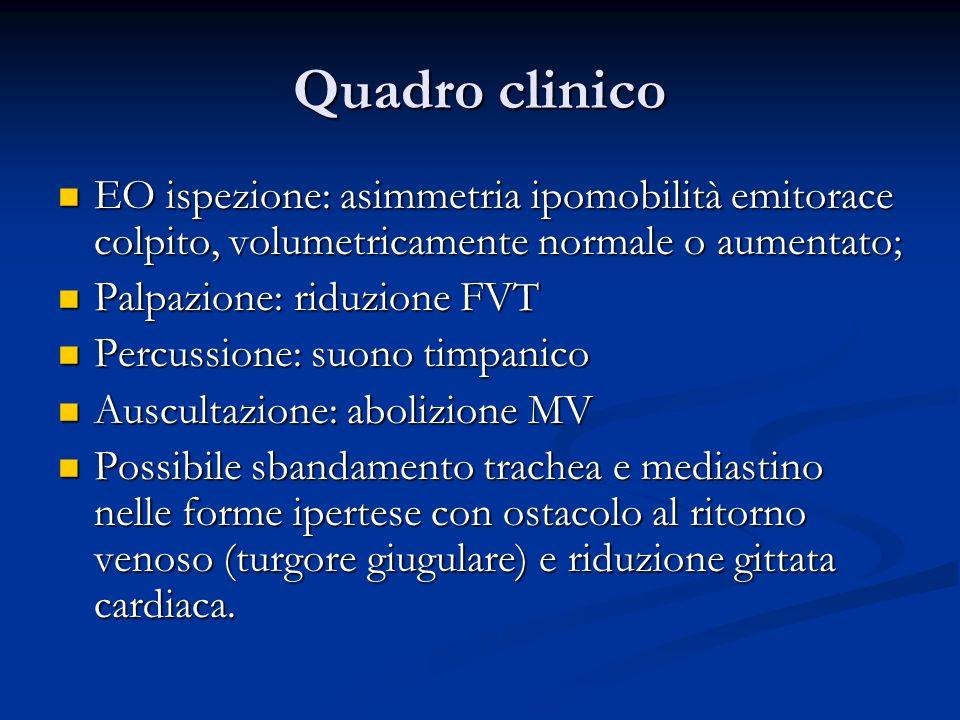 Quadro clinico EO ispezione: asimmetria ipomobilità emitorace colpito, volumetricamente normale o aumentato; EO ispezione: asimmetria ipomobilità emit