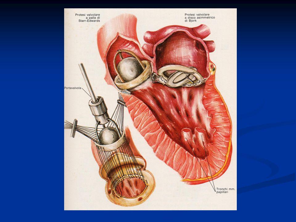 PROTESI MECCANICHE A DISCO DURATA Teoricamente illimitata DURATA Teoricamente illimitata COMPLICANZE Tromboemboliche COMPLICANZE Tromboemboliche MALFUNZIONAMENTI: MALFUNZIONAMENTI: - Blocco del disco pertrombi - Blocco del disco pertrombi contatto con pareti cardiache lesioni del cestello - Usura e lussazione del disco - Usura e lussazione del disco - Frattura del disco (rara) - Frattura del disco (rara) - Distacco dallanulus - Distacco dallanulus TERAPIA ASSOCIATA Anticoagulanti a vita DURATA Teoricamente illimitata DURATA Teoricamente illimitata COMPLICANZE Tromboemboliche COMPLICANZE Tromboemboliche MALFUNZIONAMENTI: MALFUNZIONAMENTI: - Blocco del disco pertrombi - Blocco del disco pertrombi contatto con pareti cardiache lesioni del cestello - Usura e lussazione del disco - Usura e lussazione del disco - Frattura del disco (rara) - Frattura del disco (rara) - Distacco dallanulus - Distacco dallanulus TERAPIA ASSOCIATA Anticoagulanti a vita