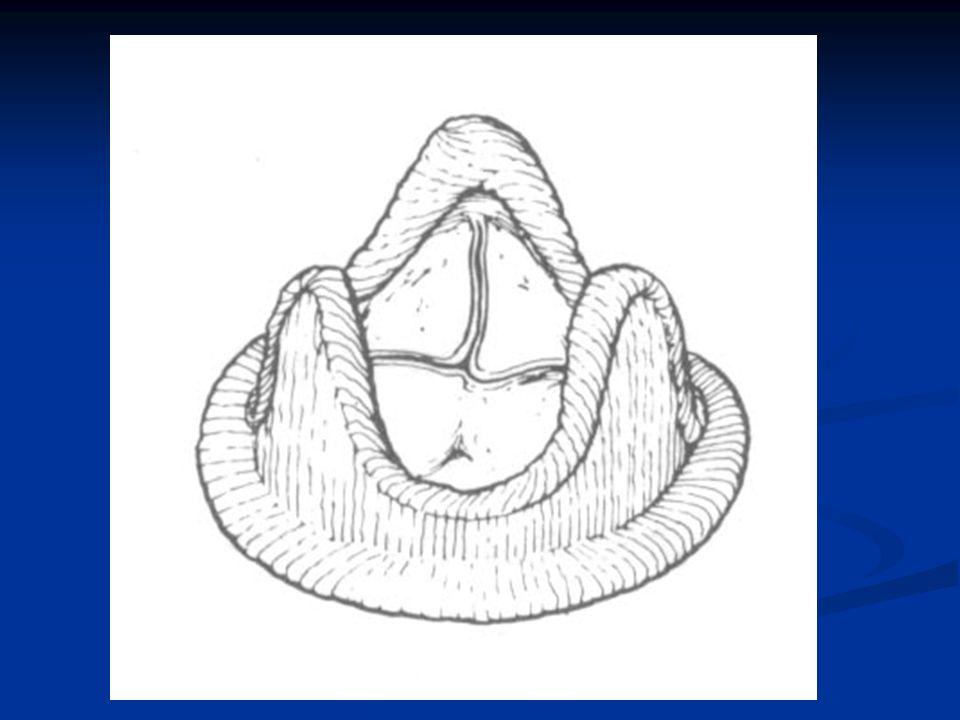 DURATA 10-15 anni COMPLICANZE Stent ingombrante; possibili lesioni della parete posteriore del VS in caso di impianto di protesi mitralica MALFUNZIONAMENTI : Precoce calcificazione e/o degenerazione delle cuspidi Precoce calcificazione e/o degenerazione delle cuspidi Lacerazione delle cuspidi Lacerazione delle cuspidi Distacco dallanulus Distacco dallanulus DURATA 10-15 anni COMPLICANZE Stent ingombrante; possibili lesioni della parete posteriore del VS in caso di impianto di protesi mitralica MALFUNZIONAMENTI : Precoce calcificazione e/o degenerazione delle cuspidi Precoce calcificazione e/o degenerazione delle cuspidi Lacerazione delle cuspidi Lacerazione delle cuspidi Distacco dallanulus Distacco dallanulus TERAPIA ASSOCIATA non è necessaria la terapia anticoagulante (utile nei primi 3 mesi)