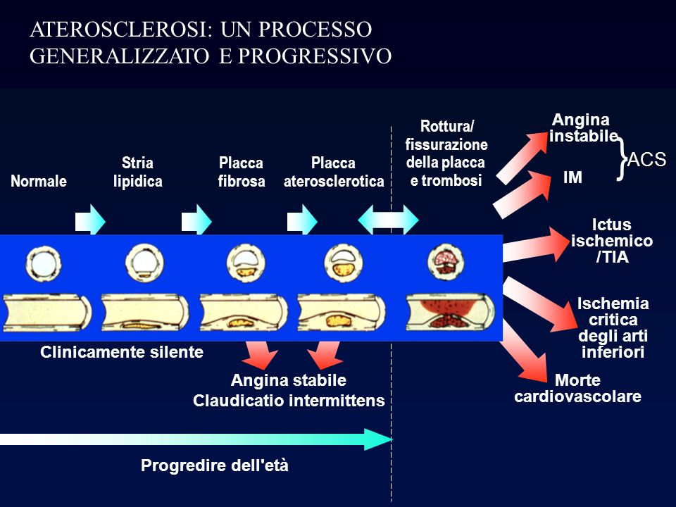 PATOGENESI DELLATEROSCLEROSI: La formazione della stria lipidica Rappresenta la prima alterazione della parete vasale nello sviluppo dellaterosclerosi, ed è presente fin dalle prime decadi di vita.
